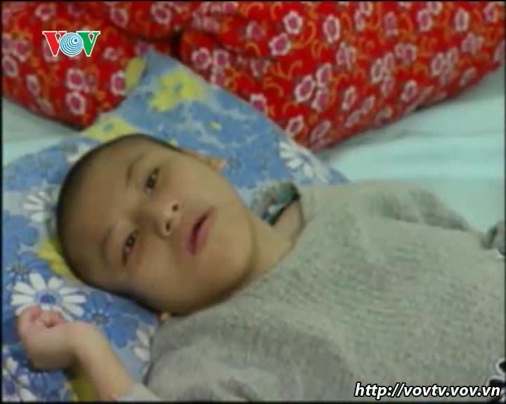 ベトナム人枯葉剤被害者の痛みを癒すための努力
